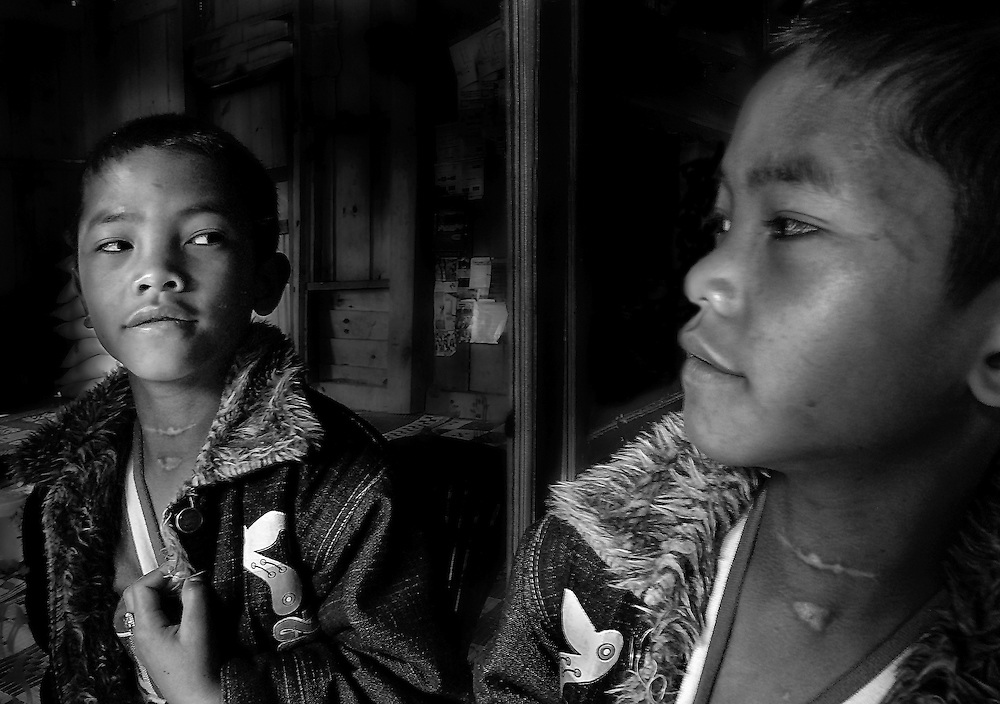 A 12 year old from Xieng Khuang was hit by shrapnel in the throat necessitating 3 operations to save him.