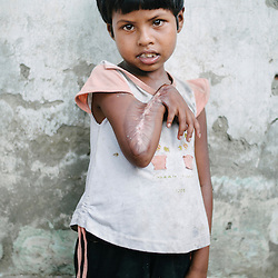 Sittwe IDP camps. May 2013.<br />