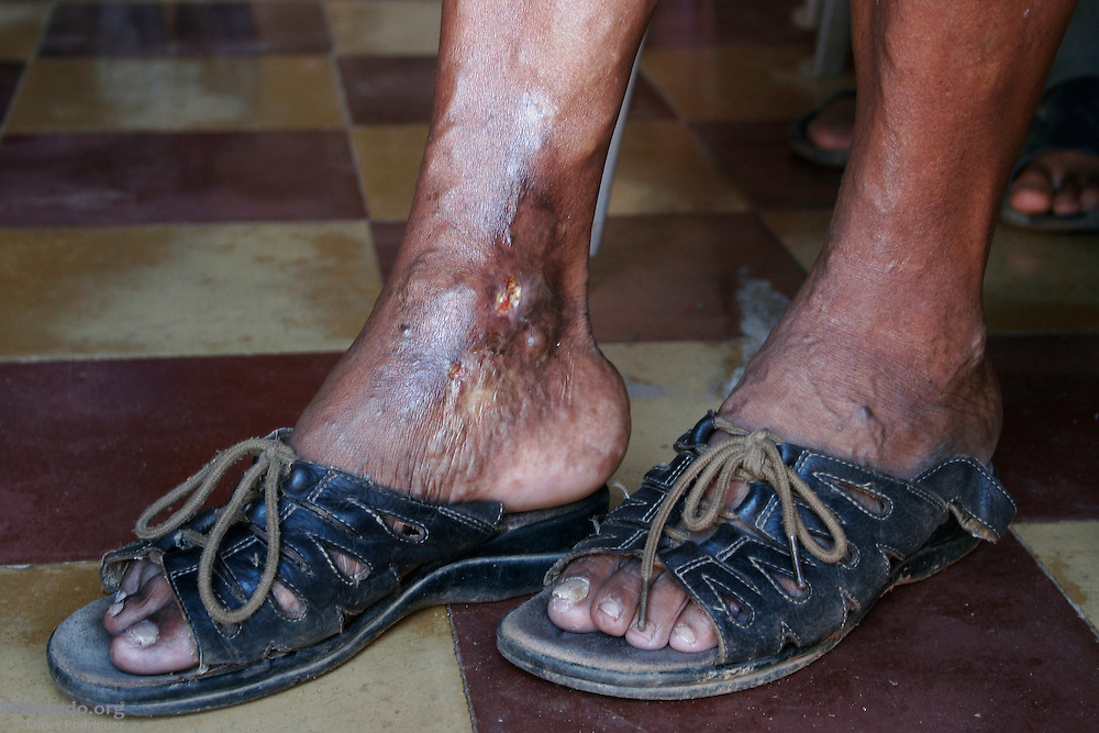 Maura Arteaga Ramos is one of hundreds of residents from adjacent communities to Goldcorp's San Martin mine in Honduras' Siria Valley who suffer from endemic skin disorders. Locals and health workers claim the black ankle syndrome has been spawned by contaminated dust from the tar sprayed on the roads by mine employees. El Pedernal, El Porvenir, Francisco Morazán, Honduras. August 18, 2007.