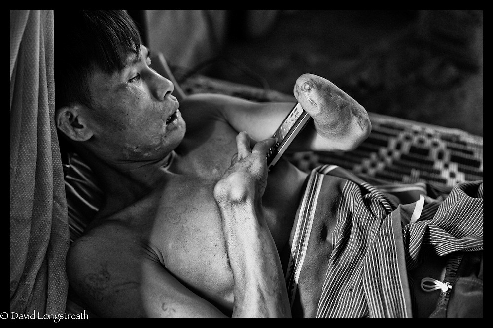 An ethnic Karen refugee landmine victim at the Mae La refugee camp near Mae Sot, Thailand.  (Photo by David Longstreath)