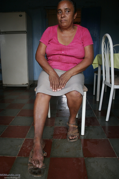 Modesta Arteaga Ramos from El Pedernal, is one of hundreds of residents from adjacent communities to Goldcorp's San Martin mine in Honduras' Siria Valley suffer from numerous skin, breathing, nervous and gastrointestinal disorders due to contamination from the nearby cyanide-leaching gold mine. El Pedernal, El Porvenir, Francisco Morazán, Honduras. August 18, 2007.