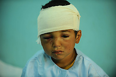 APR 3 2013 Child wounded by Taliban