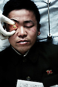 North Korea Eye Surgery Workshop. Farmer Pak V Chol 42 lies on the preparation table waiting for anaesthetic block before operation on his mature cataract.