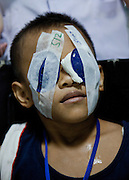 Eye Camp Medan in North Sumartra Indonesia.Eye Camp Medan in North Sumartra Indonesia. Andre and Andro Simanungkalit (9 year old twins) from Medan. Father, Hermes Simanungkalit (42 yo) works as a smolder, earning Rp 800,000 (USD 94) a month and mother BungaTio Bakara (45 yo) sells snacks in front of their house, earning Rp 500,000 (USD 58) a month. Eye camp organised by Singapore based organisation A New Vision, surgery performed by Nepalese Dr Sanduk Ruit and his Tilganga Institute of Opthlamology Team supported by Fred Hollows Founation.. .