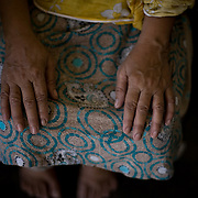 Tara's (nickname meaning 'Star') hands.<br /> With no instruments of her own, Tara lets the patients buy blades and the necessary medicine, shifting part of the responsibility in case things go wrong.<br /> Lack of sufficient hospitals and affordable medical care are major reasons why women still rely heavily on the services of a dai who are very important and respected figures within their communities. Orangi town, Karachi, Pakistan, 2011