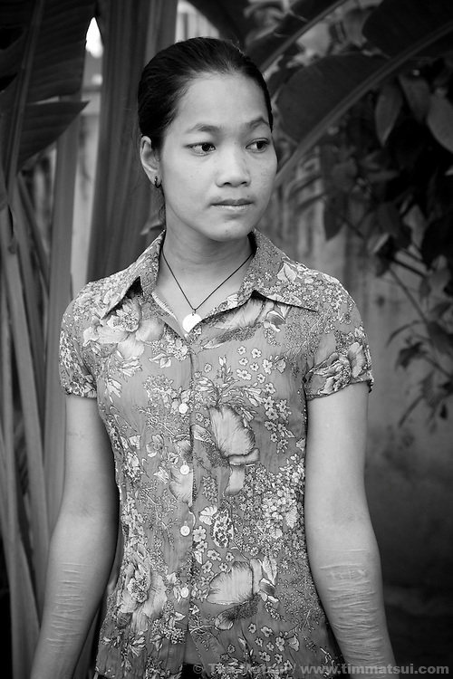 "Srey Kah, a prostitute after a clinic visit at the NGO ""Acting for Women in Distressing Situations"" (AFESIP) which conducts outreach and provides services in Phnom Penh, Cambodia for victims of sex trafficking. Srey Kah was raped at 16 in her home town, later she was sold by a friend and held captive as a sex worker, then arrived in Phnom Penh and turned to prostitution to survive; she has survived beatings, gang rapes, drugs, and self mutilation. She continues as a prostitute so she can support her mother and put her younger sister through public school. Srey Kah's story is not unique. AFESIP offers housing, education, training, and counseling for women who are victims of sex trafficking, worked as prostitutes, or are escaping domestic violence. Founded by Somaly Mam, who herself was once a prostitute and victim of trafficking and domestic abuse, AFESIP has three facilities in Cambodia and works with other NGO's to provide long term care for the women."
