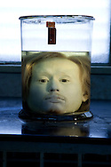 Diogo Alves head preserved in formalin. Since its foundation, the city of Lisbon had problems with the supply of drinking water to the population. In order to solve this problem, in 1731 King John V begins the contruction of the long-touted &quot;Aguas Livres Aqueduct&quot; wich has its construction completed in 1748, from this moment Lisbon would have 3 times more water than previously available.<br /> The aqueduct extends over 14,174 meters and consists of 127 arches along its route. Of all the arches, the most known is the one in the valley of Alcantara, the Arco Grande, is 65 meters high and is the largest pointed arch in the world.<br /> The other reason that made the Aqueduct famous is to have been the stage of nineteenth century's most famous serial killer in Portugal, Diogo Alves. Born in Spain, came to live in Lisbon at a very early age, known as the &quot;Assassino do Aqueduto das Aguas Livres&quot; or also &quot;Pancadas&quot;. Diogo Alves is thought to have robbed and thrown from the Arco Grande area more than seventy people. No one ever found out how he got the key to enter the aqueduct and commit the crimes.<br /> Diogo Alves was convicted and hanged in 1841. His head was stored in formalin at the time so that medicine could studie his and be able to characterize the mind of a criminal.<br /> In 1911 is presented to the public the film &quot;Os crimes de Diogo Alves&quot; the first Portuguese fictional film. 15/01/2012 NO SALES IN PORTUGAL