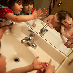 Sister Shaylee Hogan keeps 4-year-old craniopagus twins Tatiana and Krista Hogan company as they wash their hands, Vernon, British Columbia, Canada, Feb. 27, 2011. The twins, born Oct. 25, 2006 to parents Felicia Simms and Brendan Hogan, are connected at the head and share a brain. Neurologists say the twins are the only such set that have a common neurological connection.