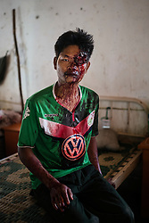 Laiza 20160915<br /> Lazum Htoi San, a K.I.A. rebell injured in a Burmese army shelling of Tsin Yu Bum, a mountain top with a frontline outpost, has just arrived at the army hospital in Laiza, Kachin State, Myanmar.<br /> Photo: Vilhelm Stokstad / Kontinent