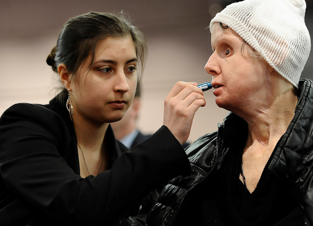 Briana Nash, left, helps her mother Charla Nash, apply lip balm before speaking to Connecticut legislators at a public hearing at the Legislative Office Building, in Hartford, Conn. Nash, who was mauled by a friend's chimpanzee in 2009, is making a personal plea to allow her to sue the state for $150 million in damages. The panel is considering a bill that would override the June decision by the State Claims Commissioner, who dismissed Nash's initial request for permission to sue. The state generally is immune from lawsuits, unless allowed by the claims commissioner. (AP Photo/Jessica Hill)