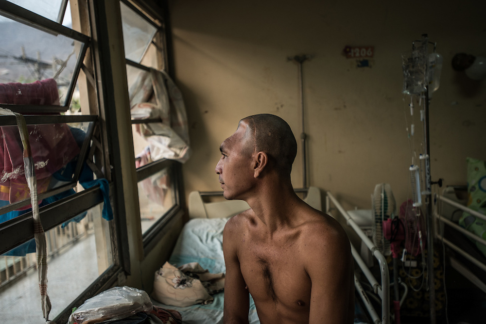 PUERTO LA CRUZ, VENEZUELA - APRIL 15, 2016: Julio Rafael Parucho, 32, fell off a truck a year ago and sustained a serious head injury.  Doctors removed a quarter of his brain, leaving his head deformed.  He has been waiting for a year for the operation to fix the deformity, but there is a shortage of the plate doctors need for the operation.   Hospital Universitario Dr. Luís Razetti is one of the worst state-run, public hospitals in Venezuela.  Doctors compare it to working in a war zone - they regularly have to turn patients away, because they don't have the majority of medicines  or medical equipment and supplies needed to give them medical attention.  When they do accept patients, they have to work with extremely limited resources, because they don't have the supplies they need for things like X-Rays,  and many exams nd operations.  The hospital's infrastructure is crumbling, and staff don't have all the cleaning supplies required to keep the hospital sanitary. The hospital also suffers from weekly shortages of running water and electricity.  In April, several babies died when a power outage turned off the incubators, and the hospital's generator failed to work because of lack of maintenance.  The same month, authorities found over 100 pieces of medical equipment, stolen from the hospital in the home of the assistant to the hospital's director.  Despite having the largest oil reserves in the world, falling oil prices and wide-spread government corruption have pushed Venezuela into an economic crisis, with the highest inflation in the world and chronic shortages of food and medical supplies.  PHOTO: Meridith Kohut