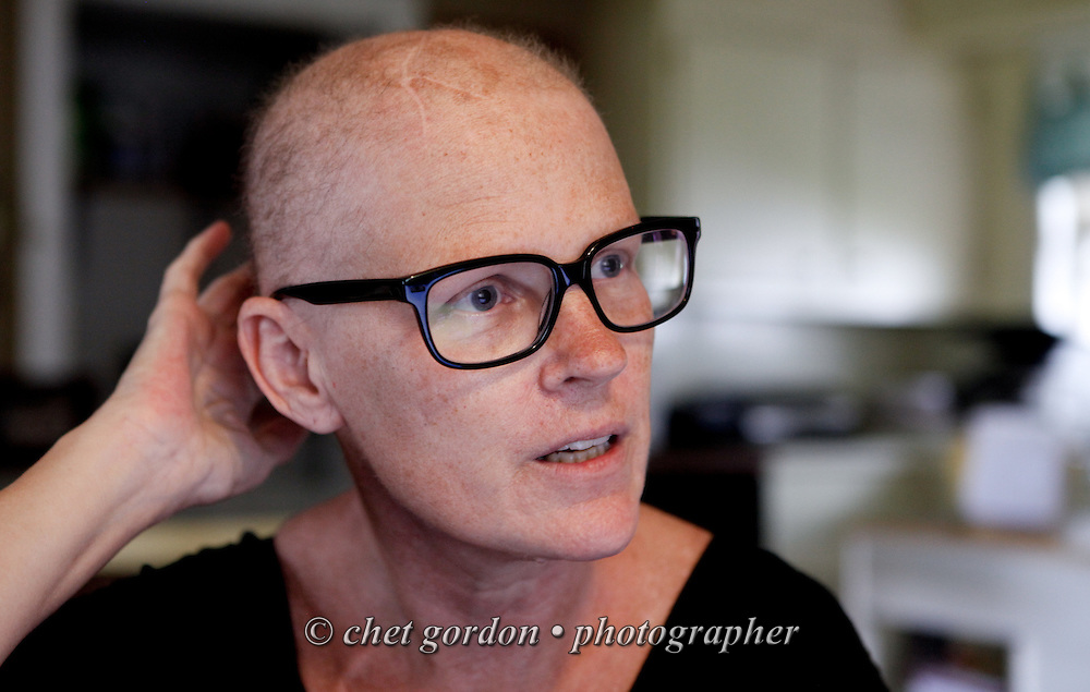 Pictures Of Losing Hair Due To Chemo Cancer Patient