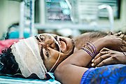 He suffered head injury when he went inside the factory to rescue people.He was in critical condition and was gasping for life every 5 minutes. Image © Balaji Maheshwar/Falcon Photo Agency