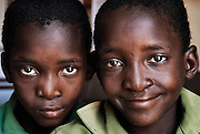 Howard Institute, Zimbabwe. November, 2012. Tinotende and Tinashe Mufuka were born conjoined and separated in Toronto, Canada. Both experience learning difficulties today.
