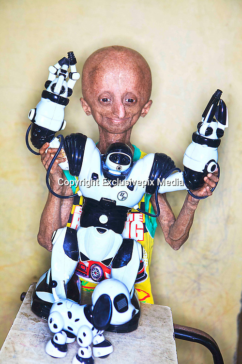 hutchinson gilford essay View essay - biology progeria essay from biology biology at bowie high school progeria progeria, or hutchinson-gilford syndrome, is an extremely rare autosomal dominant genetic disorder.