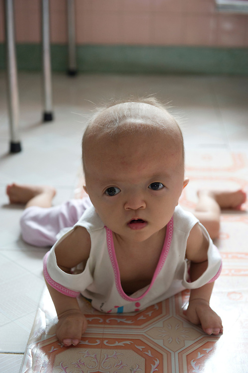 Nguyên Thi Ngoc Huong born 11/5/2009.Sufffering with Apert Syndrome. Patient of the Peace Village at the Tu Du (Freedom) Obstetrics and Gynaecology Hospital in Ho Chi Minh City, Vietnam