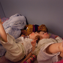 Four-year-old craniopagus twins Tatiana and Krista Hogan get ready for bed in their home in Vernon, British Columbia, Canada, Feb. 27, 2011. The twins, born Oct. 25, 2006 to parents Felicia Simms and Brendan Hogan, are connected at the head and share a brain. Neurologists say the twins are the only such set that have a common neurological connection.