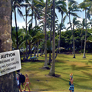 A warning sign posted for all visitors to see hangs on a coconut tree at Ahalanui Park on the Big Island, Hawaii. A small number of individuals are killed each year from falling coconuts.