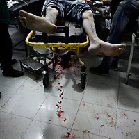 SYRIA, ALEPPO. A Free Syrian Army in the Shifa hospital surgery room, on September 27, 2012. The only emergency service still working in Rebels-controlled Aleppo, the Shifa hospital has been targeted more than thirty times by the Assad forces. ALESSIO ROMENZI