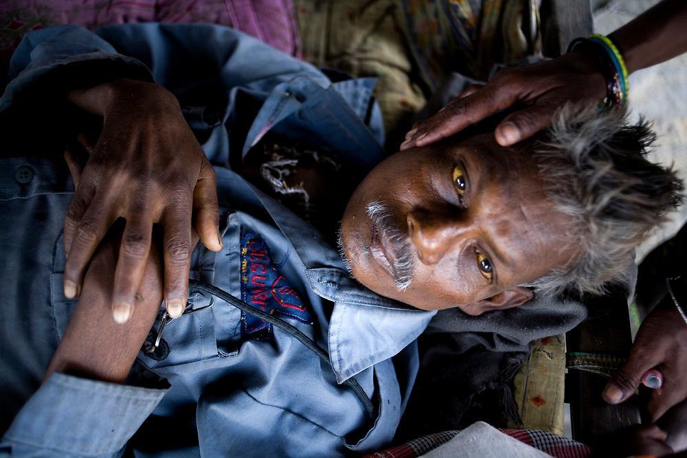 A worker is sick from jaundice as they do not have access to clean drinking water.  Keonjhar, Orissa, India
