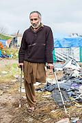 An Afghan man who lost his leg to a landmine in Afghanistan.