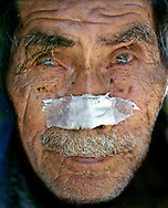 COYOLITO (Tejutla), CHALATENANGO, EL SALVADOR- MAY 2000: An old man, viejo hombre, awaits medical treatment at a state run medical clinic in Coyolito. The tip of the man's nose was badly infected and he said he had bad vision. The medical clinics, the government said, can help ease the long tensions of the civil war in FMLN, Farabundo Martí National Liberation Front, controlled Chalatenango state. (Photo by Robert Falcetti). .