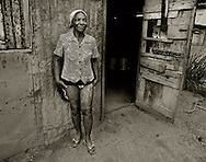 Batey 50, Dominican Republic- A Haitian sugarcane worker in Batey 50 shows a skin condition she can not get treated. The workers earn an average of less than $3 per day and are housed in worker communities known as bateyes. These small villages often have deplorable and unsanitary living conditions.  (Photo by Robert Falcetti)