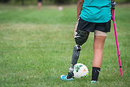 Only weeks after loosing her leg, and being fitted with her custom designed prosthetic leg, Jade DiSanti warms up by working on her ball skills during a practice in Delran, NJ  Wednesday, August 20, 2014   (PHOTO Bryan Woolston / @woolstonphoto)