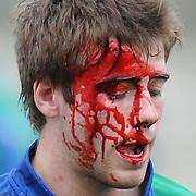 Harris Jones injury