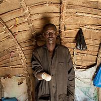 30/01/2013. Gao, Mali. Al Zouma Issa, de 39 ans est le dernier amputé de la main par les islamistes à Gao, la sentence fut exécutée le 21 décembre dernier. Il a été condamné pour vol, il clame son innocence. ©Sylvain Cherkaoui