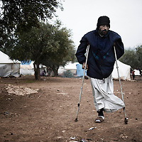 SYRIA, ATMEH. Ismail al-Masri was fighting with the Free Syrian Army when tank fire cut away his leg. He is now living with no assistance in a camp for displaced Syrians in Atmeh, on January 12, 2013. The camp is on the border with Turkey and is providing shelter to nearly 13,000 people. ALESSIO ROMENZI