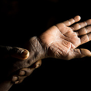 Semebtu Chokole, 50-55, shows her broken wrist, Adi Sibhat, Tigray, Ethiopia