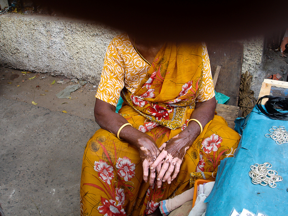 In India about 2-5% of the population is affected by vitiligo. Through photography, we wish the situation in India can enhance the awareness of such disease to the people in the world.