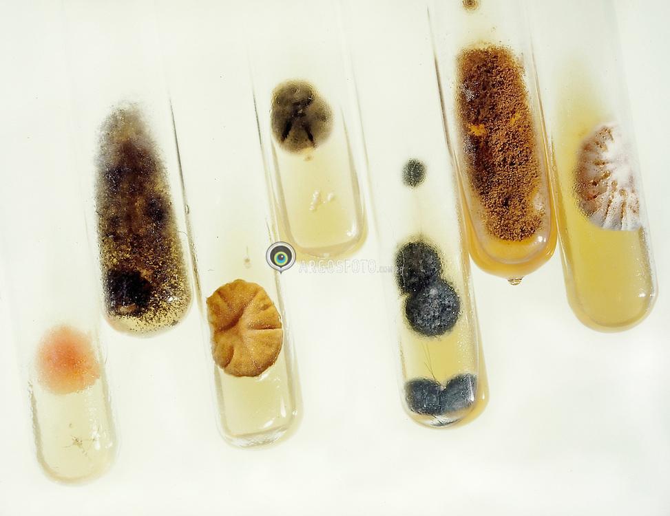 Amostras de microorganismos em tubos de ensaio no Laboratorio Bronstein / Samples of microorganisms on a proof tube at Bronstein Laboratory