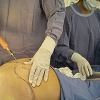 Medical tourism is rapidly-growing practice of traveling across international borders to obtain health care, specially plastic surgery. Colombia is one of the three leading countries worldwide for plastic surgery, along withBrazil and Mexico. Companies such as The Medical Trip, offer packages including flights, hotels and city tours. Pictured: Model released photo of Surgeon Andres Mejia performing aBrazilian butt lift (which consists of fat grafting from a body area, and transfering it to the buttocks) at Santa Barbara Clinic in Bogota, cast of the television show Extreme Makeover in Colombian Television.
