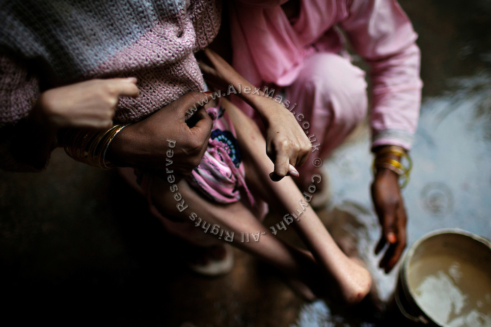 Samir, 14, a severely disabled boy, is being washed by his mother inside their home in Kasi Camp, one of the water-affected colonies near the abandoned Union Carbide (now DOW Chemical) industrial complex in Bhopal, Madhya Pradesh, central India.