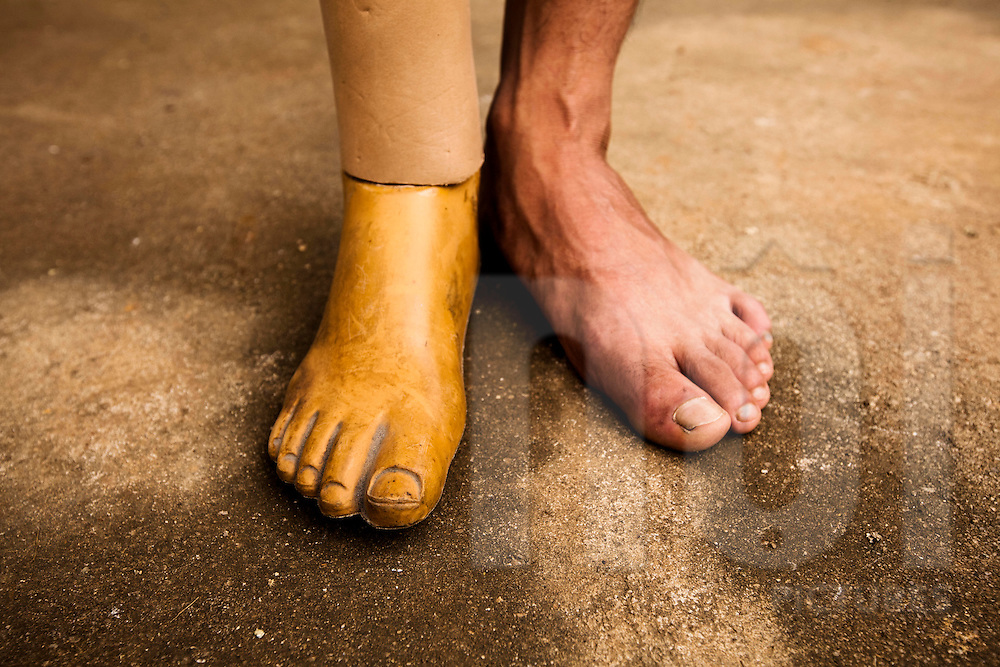 Close up of the prosthetic foot of a young Vietnamese man in Son La province, Vietnam, Southeast Asia