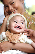 A 25 year-old Thai mother and her 18-month old son during patient screening as part of Operation Smile's World Journey of Smiles at Mae Sot Hospital, Tak Province, northern Thailand on Wednesday, November 9, 2007. Operation Smile is the Norfolk, VA based medical organization that performs free cleft lip and palate facial corrective surgery to young adults worldwide.