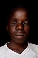 Aportrait of a boy who was shot by mine security protests while walking to school near the North Mara mine near Nyagota on July 31, 2010.