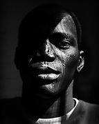 Peter Thepe Beny, a refuge from the Sudan, came to America after being shot through the chin causing permanent damage to his mouth, lips, and nose.