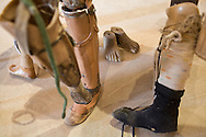 Patients at Cooperative Orthotic and Prosthetic Enterprise (COPE) donate improvised prothesis for display in the visitors center.