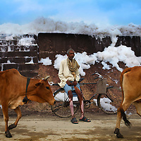 A farmer from a village outside Kanpur, India suffers from Patchy skin hyperpigmentation and open sores, a result of high levels of arsenic in the drinking water. Kanpur is the ninth-largest city in India, and one of its most severely polluted. Its eastern districts feature about 350 industrial leather tanneries, many of which discharge untreated waste into local groundwater sources and the Ganges River. These pollutants include toxic levels of metal contaminants such as chromium, mercury, and arsenic.