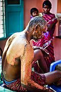 He got severe burns when the accident took place while he was disposing the waste from factory.The accident took place as the bullock cart carrying the waste from factory caught fire due to friction on 2nd August 2012. Image © Balaji Maheshwar/Falcon Photo Agency