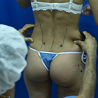 Medical tourism is rapidly-growing practice of traveling across international borders to obtain health care, specially plastic surgery. Colombia is one of the three leading countries worldwide for plastic surgery, along withBrazil and Mexico. Companies such as The Medical Trip, offer packages including flights, hotels and city tours. Pictured: Model released photo of SurgeonFreddy Pintomarking a patient before surgeryat Santa Barbara Clinic in Bogota.