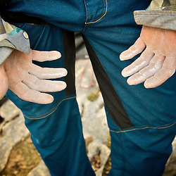 Mich Kemeter, world class highliner, climber and BASE jumper showing the damage on his hands after a week of hard climbing sessions.Gorges du Verdon, France...2012 © Pedro PImentel