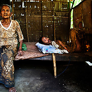 Bali, Indonesia. Mental diseases in paradise. The Balinese community doesn't accept the existance of this illness. Famillies and people are not well informed and ready to face the disease. Putu Wijana, 42 years old. His mum has been keeping him attached to the same bed for more than 21 years now