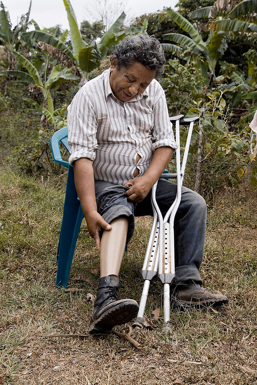 Luis Francisco Laguna shows his prosthetic leg.  He lost his leg when he stepped on a landmine while harvesting coffee in Nicaragua.