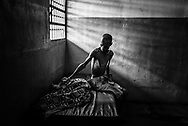 BARQUISIMETO, VENEZUELA - AUGUST 25, 2016: Schizophrenic patient, Omar Mendoza is badly malnourished, and only weighs 35 kilos. His weight dropped to 32 kg in June, but the nursing staff have been feeding him as many extra portions as they can spare to help him gain weight.  Over half of male patients at El Pampero are underweight. The economic crisis that has left Venezuela with little hard currency has also severely affected its public health system, crippling hospitals like El Pampero Psychiatric Hospital by leaving it without the resources it needs to take care of patients living there, the majority of whom have been abandoned by their families and rely completely on the state to meet their basic needs. The hospital has not employed a psychiatrist for over two years. The halls are filled with sounds of patients crying or screaming, and an overpowering stench of urine and feces. There is a shortage of food, and drugs used to combat bipolar disorder, epilepsy, schizoaffective disorder and chronic anxiety are now in short supply, as are numerous sedatives and tranquilizers needed to care for patients. PHOTO: Meridith Kohut for The New York Times