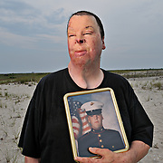 Portrait of Marine Corps Lance Cpl. Ian Lennon at his home in Lindenhurst, NY, July 17, 2008. Lennon was filling a fuel tanker when it exploded, causing third-degree burns on his face and arms while deployed to Kuwait with the 5th Marine Regiment.