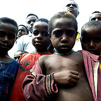 APRIL-30 :  APRIL-30 :  children suffering from various diseases due to malnutritiion in Mamit village..  Logging is one of the major causes of environmental destruction in West Papua. As Indonesia's own forest resources decline, it has turned its attention to West Papua. Indonesia's forest practices generally have little or no attention paid to the environmental impact of logging. Many of the indigenous people of West Papua are threatened as vast tracts of land have been granted as concessions to timber companies, a practice which is having severe social and physical consequences. . The island of New Guinea is one of the most biologically diverse in the world. There are species of flora and fauna in common with Australia, such as some marsupials, the bird of paradise and eucalyptus trees. Numerous species, unique to the island, are threatened by logging and other development projects. . Second only to the Amazon, the island of New Guinea has one of the largest tracts of tropical rainforest left in the world. West Papua's forests, rich in bio-diversity, account for approximately 34.6 million hectares or 24 per cent of Indonesia's total forested area of 143 million hectares. Over 27.6 million hectares of forest in West Papua have been designated as production forest.
